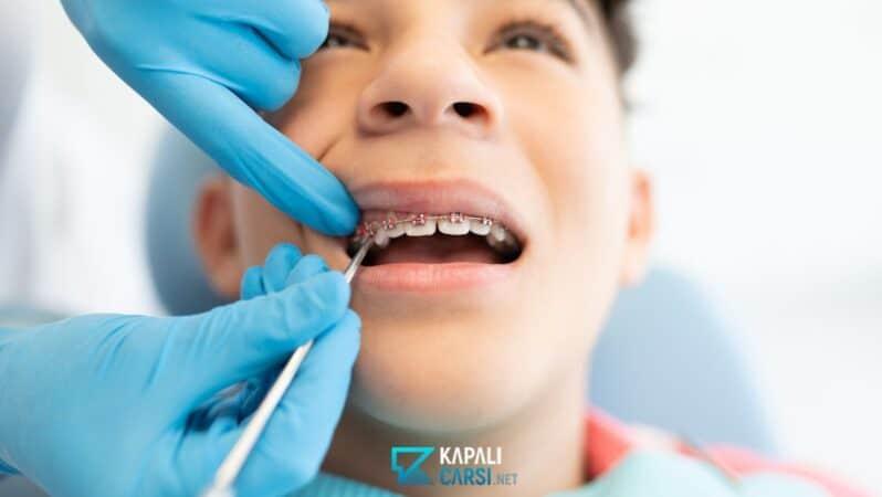 Diş Teli Tedavisinde Devlet Desteği